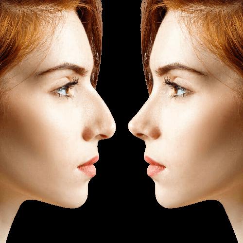 Nasenspitzenkorrektur in der Türkei